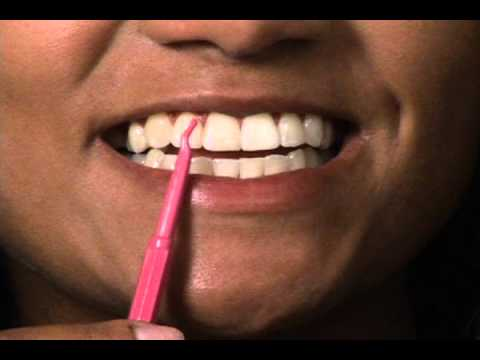 Tooth Scaler Help Remove Plaque. Clean Teeth Like A Real Dentist Today.