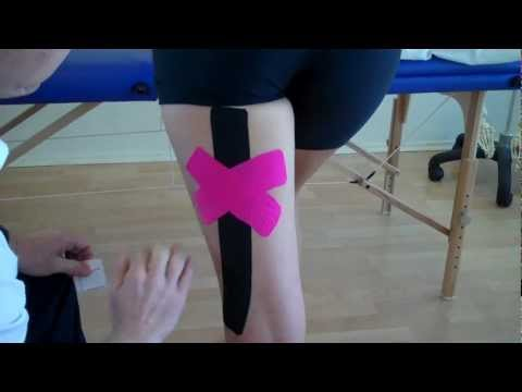 How to apply Kinesiology Taping to treat a Hamstring muscle strain