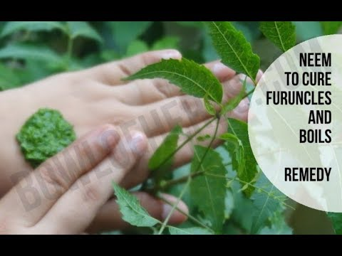 Neem to treat boils or furuncles - Natural remedy