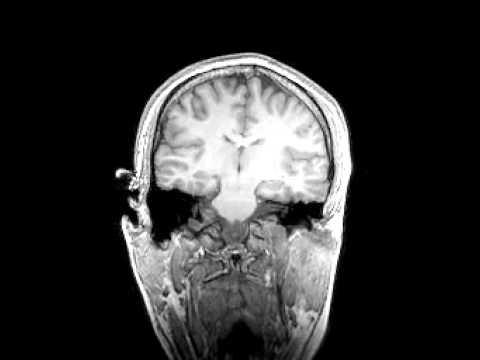 MRI scan of a person's brain