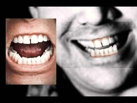 Bill Hicks Alex Jones Teeth Comparison