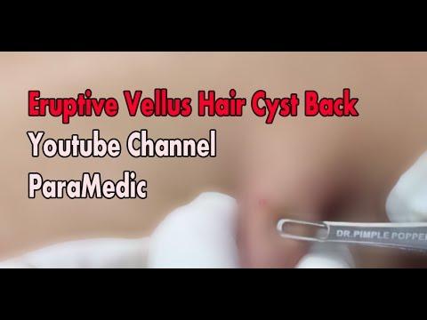 Eruptive Vellus Hair Cyst Back