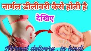 Pregnancy Tips | नार्मल डिलीवरी कैसे होती है | Tips For Normal Delivery