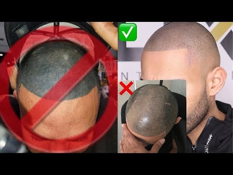 Xxx Mp4 SCALP MICROPIGMENTATION SMP LOOK NATURAL COST DOES IT FADE 3gp Sex