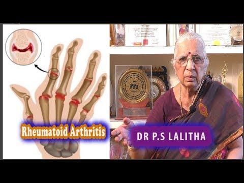 Rheumatoid Arthritis Pain Relief |Dr. P.S.Lalitha