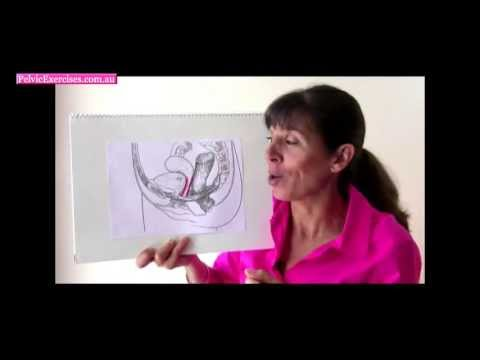 What is a Pelvic Prolapse?