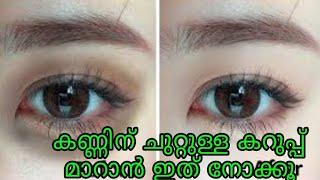 കണ്ണിനു ചുറ്റുമുള്ള കറുപ്പ് മാറ്റാം ഈ ഒരു ഒറ്റ വിദ്യ മതി/ how to remove dark circle in under eye