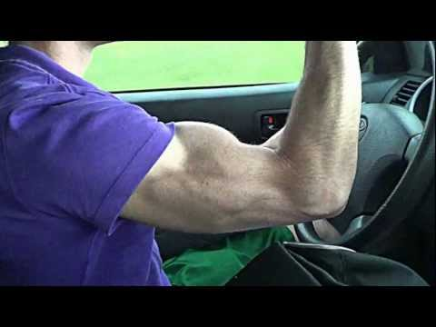 Tri-Bodybuilder Evan Posey's Striated Tricep