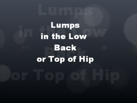 Lumps in Low Back, Top of Hip