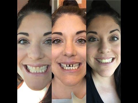 New Teeth (Crowns) Part 1