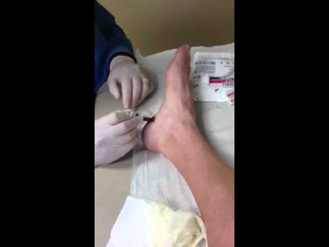 Cortisone Injection For Heel Spur