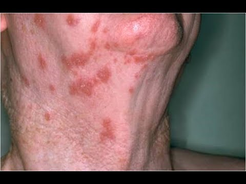 Herpes Zoster Oticus, Viral Infection Treatment, Medication For Shingles, What Is Shingles Virus