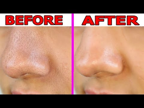 How to Shrink Large Pores on Nose Overnight || Large Pores On Nose Treatment