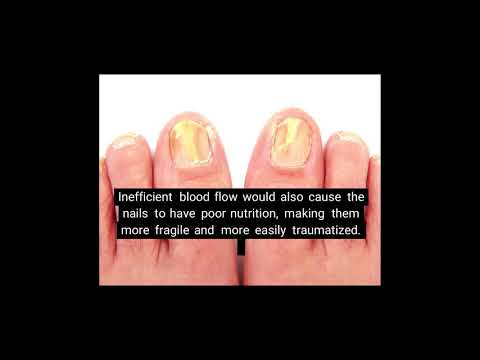 Nail Fungus 4 Causes and Risk Factors of Nail Infection - Toe Nail Fungus - Treatment & Prevention
