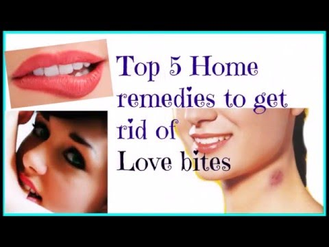 Tips-Top 5 Home remedies to get rid of Love bites