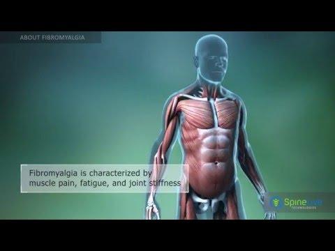 Fibromyalgia. About