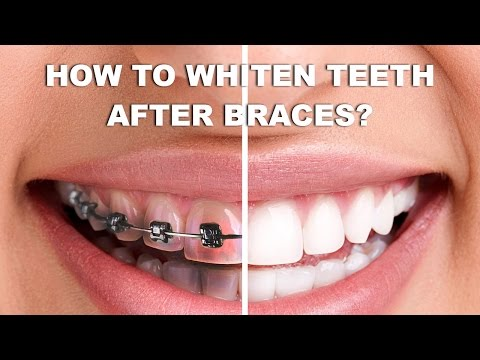How To Whiten Teeth After Braces - Whiten Teeth After Braces At Home