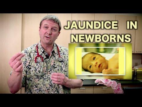 Jaundice in Newborns  (Pediatric Advice)