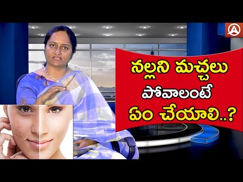 How to Remove Black Spots in Face | Beauty Tips | Namaste Telugu