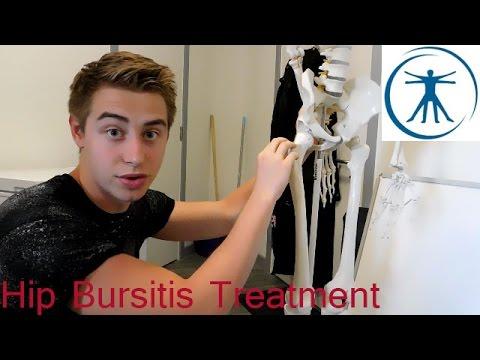 Exercises for Hip Bursitis (Trochanteric Bursitis) Treatment