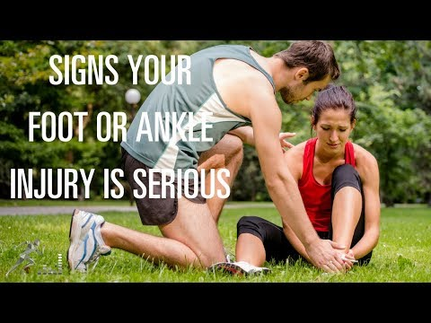 Signs your foot or ankle injury is serious