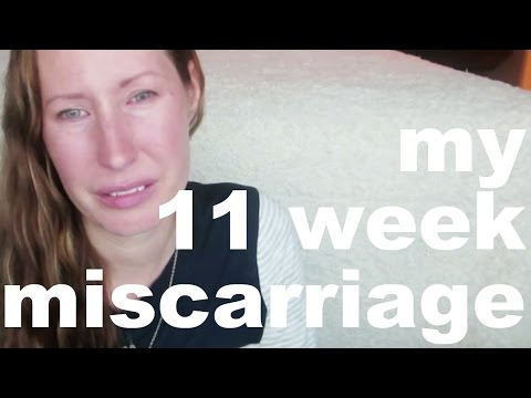 11 WEEK MISSED MISCARRIAGE | MY EXPERIENCE