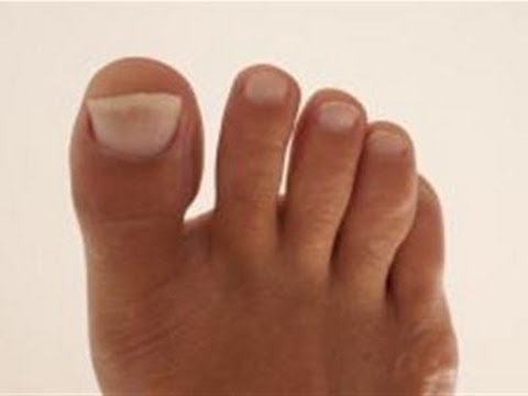 How To Manage A Broken Toe
