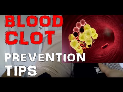 How To Prevent Blood Clots / Deep Vein Thrombosis (DVT)