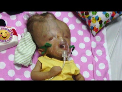 Toddler with Birth Defects 'Incompatible with Life' Defies Odds in Venezuela
