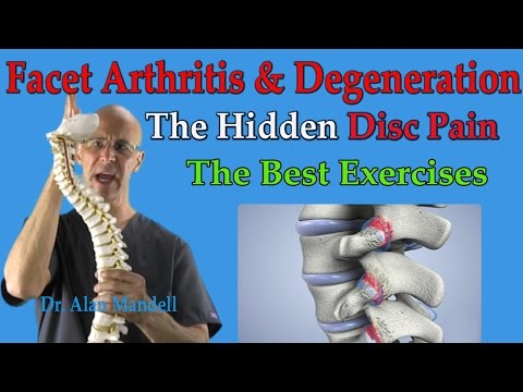 Facet Arthritis & Degeneration (The Hidden Disc Pain) Best Exercises - Dr Mandell