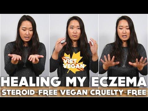 Healing My Eczema [ Steroid-free, Vegan & Cruelty Free ] ft. BetterHelp