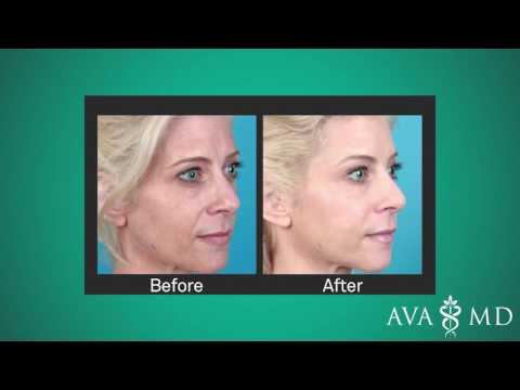 Liquid Facelift - A Non-Surgical Anti-Aging Treatment
