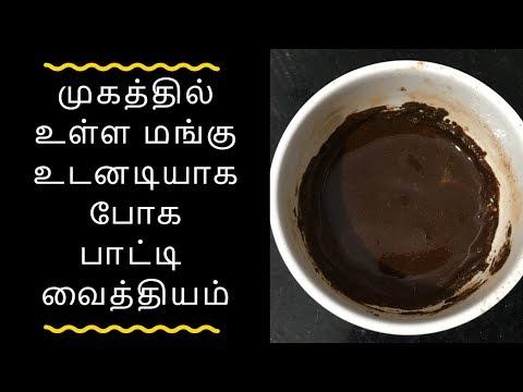 Mangu maraya tips in tamil / Mangu maraya in tamil / மங்கு நாட்டு வைத்தியம் / Tamil health tips