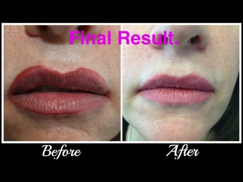 Lip tattoo Correction/Removal