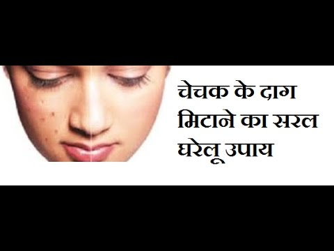 चेचक के दाग मिटाने के घरेलू उपाय /Remove chickenpox scars easily/home remedies for chickenpox scars