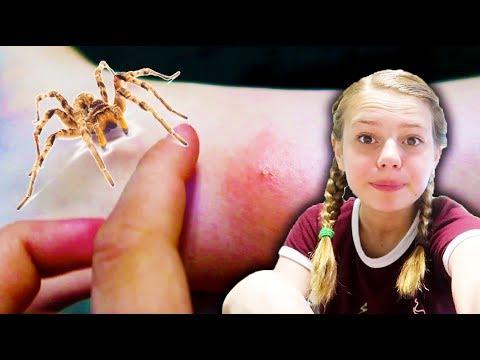 Bit by a SPIDER!!