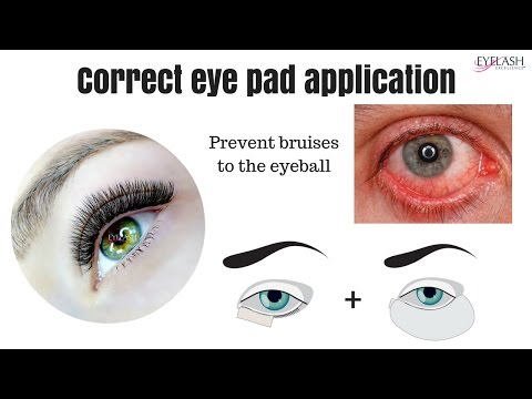 * IMPORTANT* CORRECT EYE PAD APPLICATION - prevent the bruised eyeball