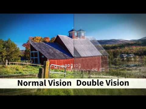 Vision problems in MS