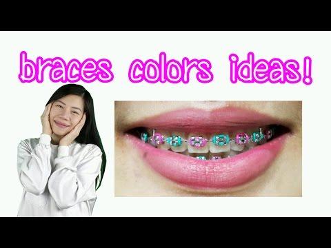 Braces Colors Ideas!