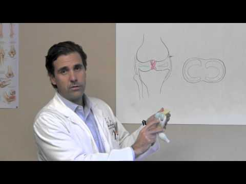 Swollen Knee - Meniscus - Orthopedic Doctor Houston Sugar Land TX - Dr J Michael Bennett
