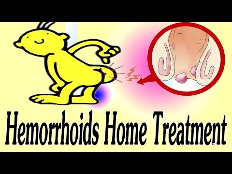 Best Home Treatment For Hemorrhoids -  How To Cure Hemorrhoids Naturally?