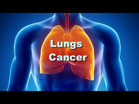 Lungs Cancer | How to Know Early Signs Of Lungs Cancer | Lungs Cancer Surgery