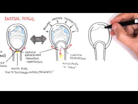 Obstetrics - Stage I of Labour