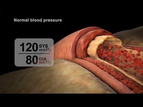 High Blood Pressure Diagnosis | NUCLEUS Medical Media