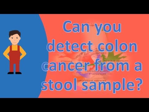 Can you detect colon cancer from a stool sample ? |Frequently ask Questions on Health