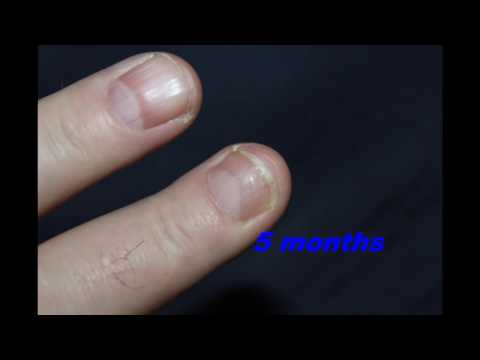 Finger Injury Time-Lapse   Six Months in 2 Minutes