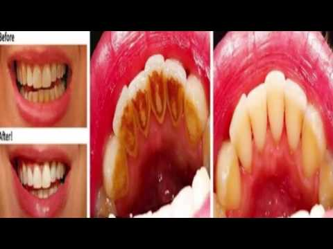Whiten Your Teeth With This Fermentation Which Kills Bacteria, Removes Stains, and Tartar