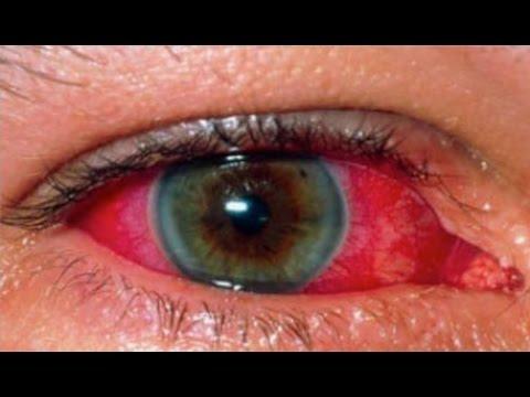 Retinal Consultants of Arizona Presents - Uveitis Patient Education