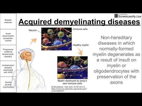 Acquired demyelinating diseases