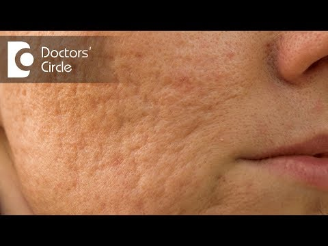 How to remove Acne scars by natural remedies? - Dr. Chetali Samant